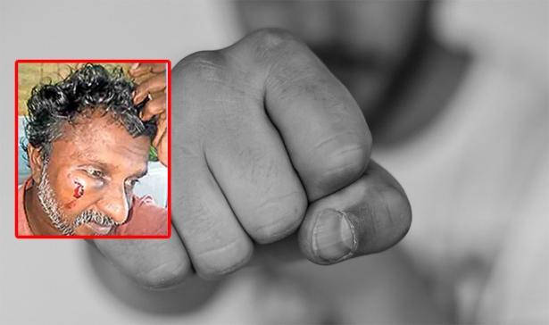 പാചകത്തൊഴിലാളിയെ മർദ്ദിച്ച് അവശനാക്കി പൊലീസുകാരനും സംഘവും; അൻപതുകാരനായ സിൽവസ്റ്ററിനെ ആളൊഴിഞ്ഞ സ്ഥലത്തെത്തിച്ച് മർദ്ദിച്ചത് നെടുമങ്ങാട് എഎസ്പിയുടെ ഡ്രൈവറും സംഘവും; കാറിൽ കയറ്റി കൊണ്ട് പോയത് മുൻവൈരാഗ്യം തീർക്കാൻ